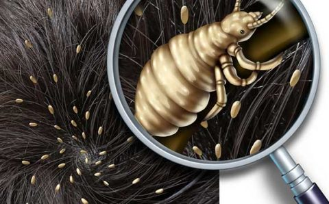 Reliable Solution to Lice Infestation in Indianapolis